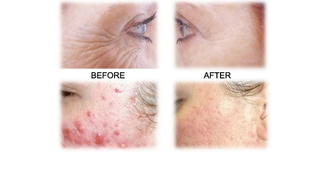 Skin Rejuvenating Facial Package